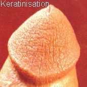 Гиперкератоз головки полового члена